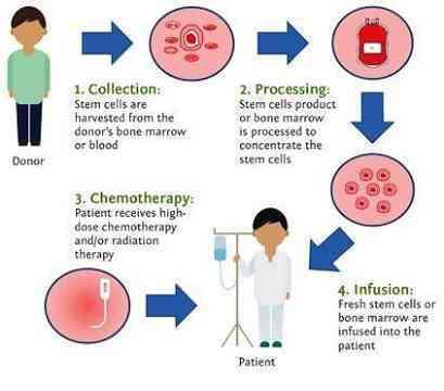 bone marrow Allogenic transplant