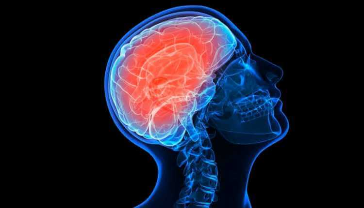 Slowed Brain Activity, Pubg (2)