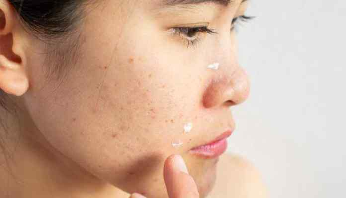 Skin Ance, Home Remedies, Treatment