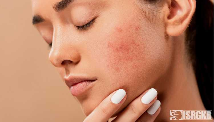 Acne, Pimples, Spots, Zits, Skin, Female, Face